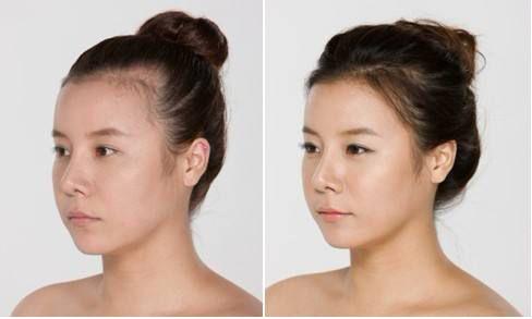 怎样的发际线才叫好看?发际线对容貌的影响有多大?